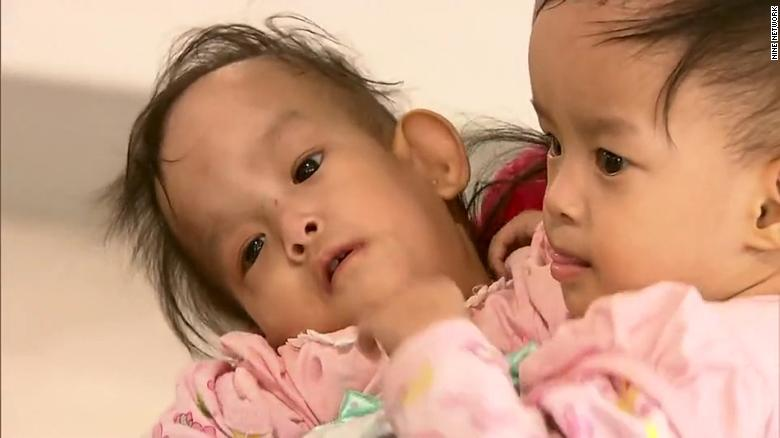 Conjoined Bhutanese twins have been successfully separated following a six-hour surgery https://t.co/yqrXjb6u76 https://t.co/1WmabxYpGc