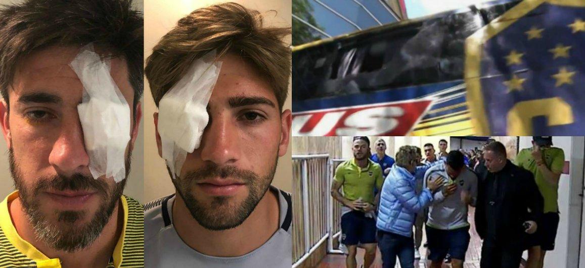 EL MOMENTO EN EL INTERIOR DEL AUTOBÚS. Así vivieron los jugadores de Boca Juniors las agresiones de los inadaptados que se disfrazaron de hinchas de River Plate: https://somosinvictos.com/2018/11/24/el-momento-en-el-interior-del-autobus-asi-vivieron-los-jugadores-de-boca-juniors-las-agresiones-de-los-inadaptados-que-se-disfrazaron-de-hinchas-de-river-plate/…