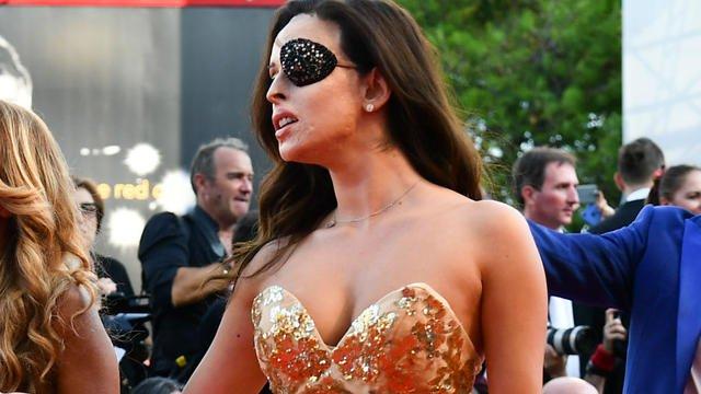 Italie : quinze ans de prison pour avoir défiguré son ex-petite amie, finaliste de Miss Italie bit.ly/2OPsFoW