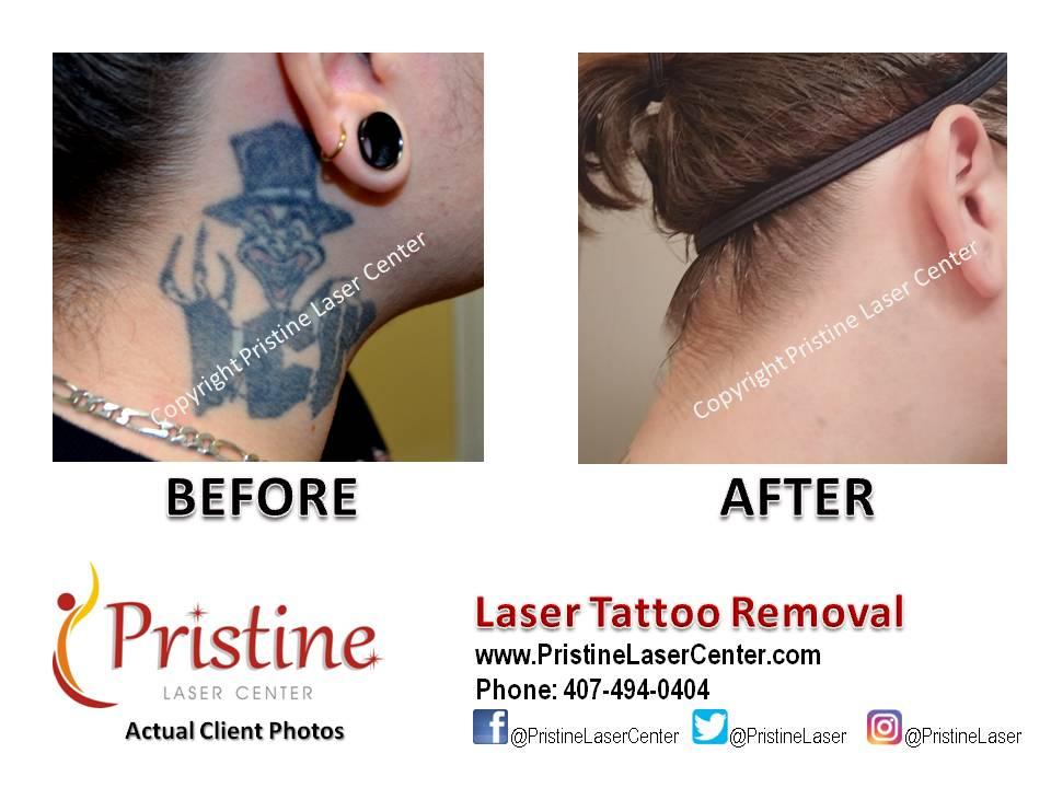 Pristine Laser on Twitter: