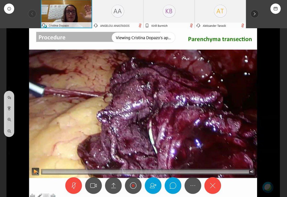 download neural transplantation in neurodegenerative disease current status