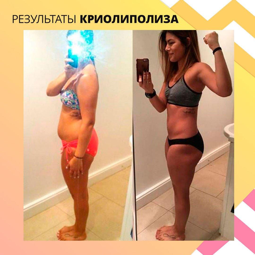 Быстро Похудела Без Спорта. 10 способов похудеть без спорта