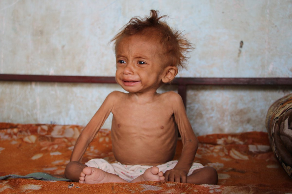 Do you remember Omar? I took Omar and his mom from Aldahei area in #Hodeidah to the nutrition center. The mother had an acute kidney failure and she died today😭. Omar will become an orphan. #Yemen.
