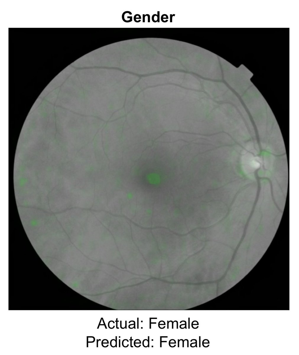 If an eye doctor looked at a retinal photo, the chance of getting gender correct would be 50-50. But deep learning training led to an AUC of 0.97  @pearsekeane pointed out how striking this is @JeffDean at a recent #AI @googleresearch meeting; dhttps://t.co/3nbFj35myta@natBMEt#OAa: