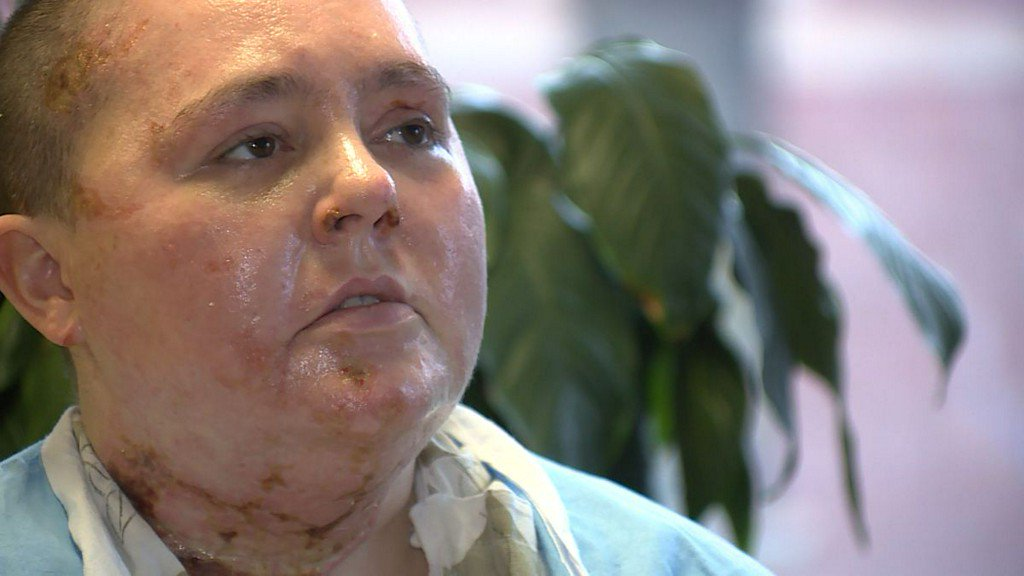 Woman nearly killed in fire talks about rescue, painful recovery https://t.co/042fZ7MbrO https://t.co/BthSCmy1qO