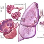 Image for the Tweet beginning: Chronic obstructive pulmonary disease (COPD)