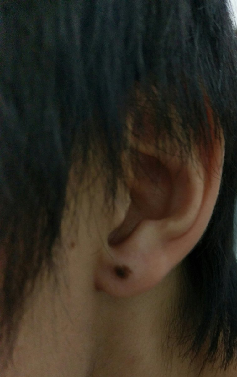 の ほくろ 耳たぶ