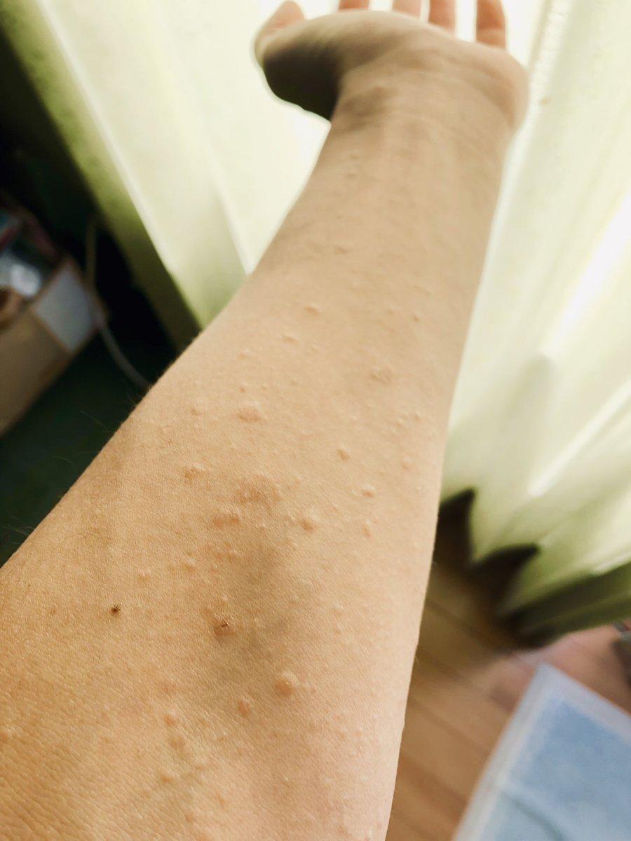 ジベル 薔薇色 粃 糠 疹