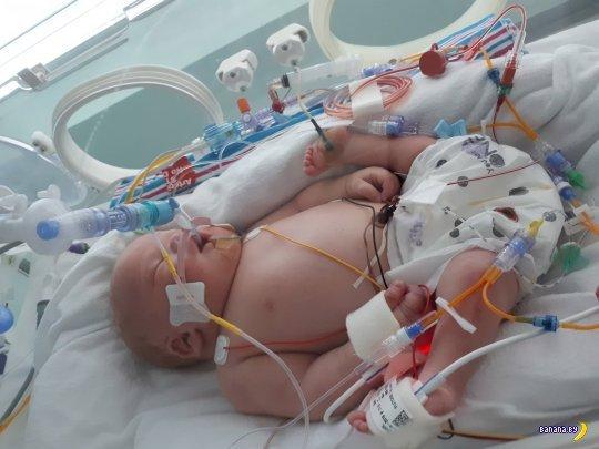 Ребёнок с редкой аномалией родился в Великобритании Фото