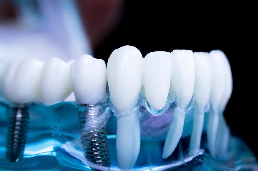 Имплантация зубов