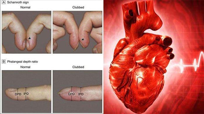 Image of Cara Mudah Mendeteksi Penyakit Jantung & Paru-paru Melalui Jari Tangan