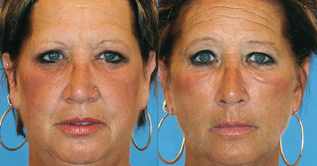 facial-effects-of-smoking