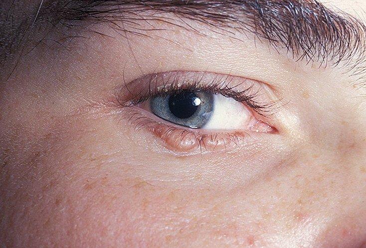 жизни дистрофия кожи фото подмосковном красногорске