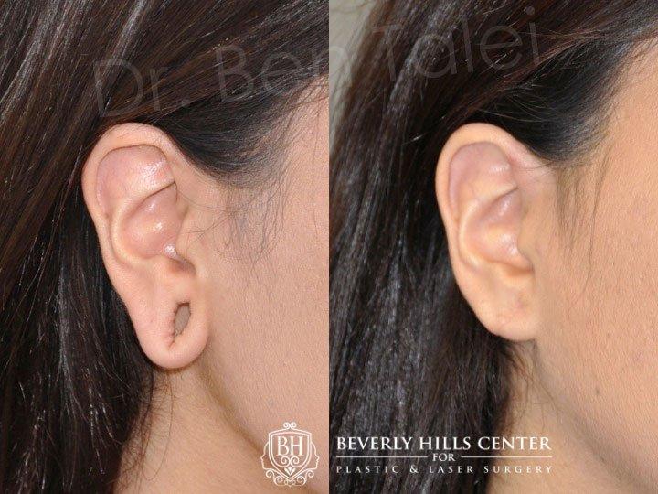 Dr Ben Talei On Twitter Gauge Piercing Stretched Ear Lobe