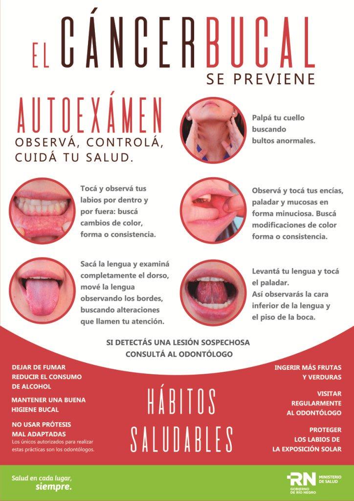 cancer bucal argentina cum să tratezi un copil de paraziți