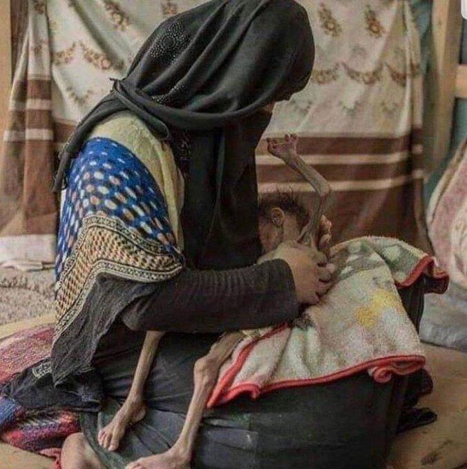 Her anne, kucağındaki yavrusunun geleceğini hayal eder. Bu anneye, hayal etmeyi bile çok gören dünya! #YemeneSessizKalma Fotoğraf