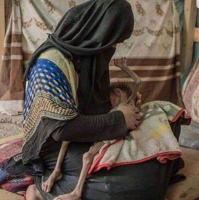 O da bir Anne! O da bir evlat! Ve bizde ne kadar in-sa-nız? #YemeneSessizKalma Fotoğraf