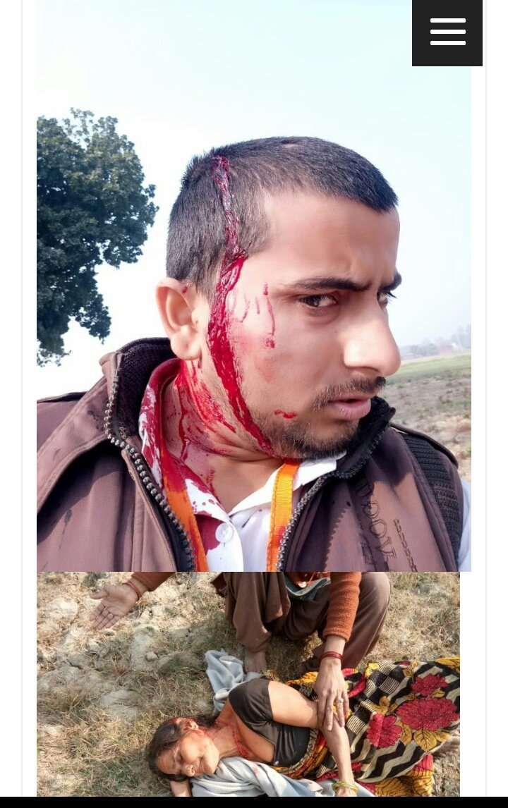 Prayaagraj: Journalist and his family attacked by cow smugglers because he wrote news reports against them. Journalist&#39;s mother is critical. (Pic)  We can be sure that there will be no outrage over this from the intolerance brigade.   https://www. bhadas4media.com/aniket-par-ham la/ &nbsp; … <br>http://pic.twitter.com/ZdPiNuFDDT