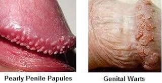 pearly penile papules std