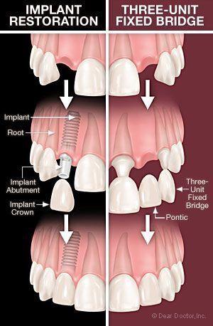 Dental Implant India (@Implantologist_) | Twitter