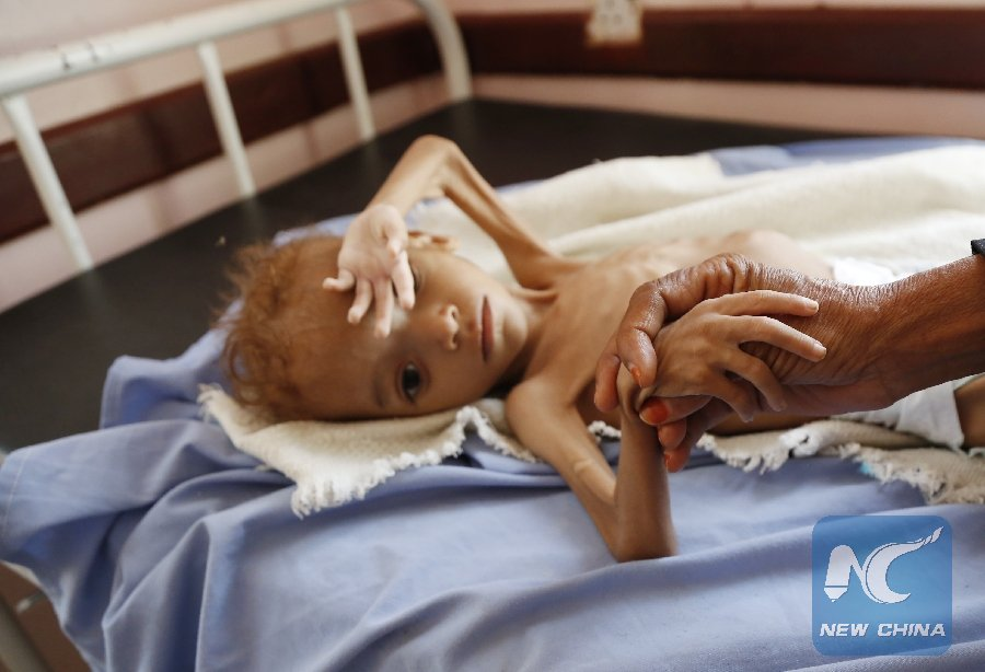 The UN humanitarian chief said Monday that Yemen now has 42 percent more areas where people suffer severe #food insecurity compared with figures from last year.