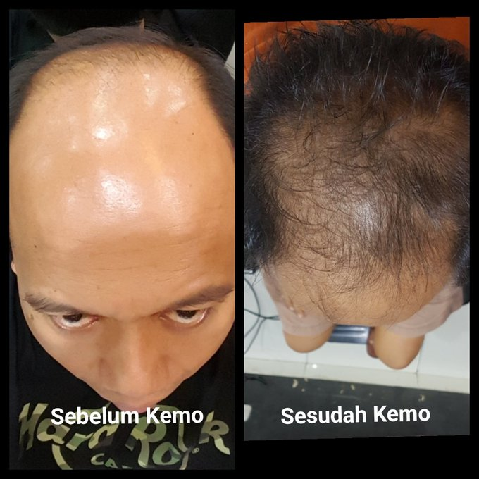 Kepala Botak Humas BNPB Sutopo Purwo Tumbuh Rambut Setelah Kemoterapi