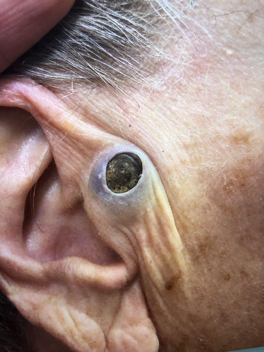 Top 10 Punto Medio Noticias | Dr Pimple Popper Blackheads In Ear