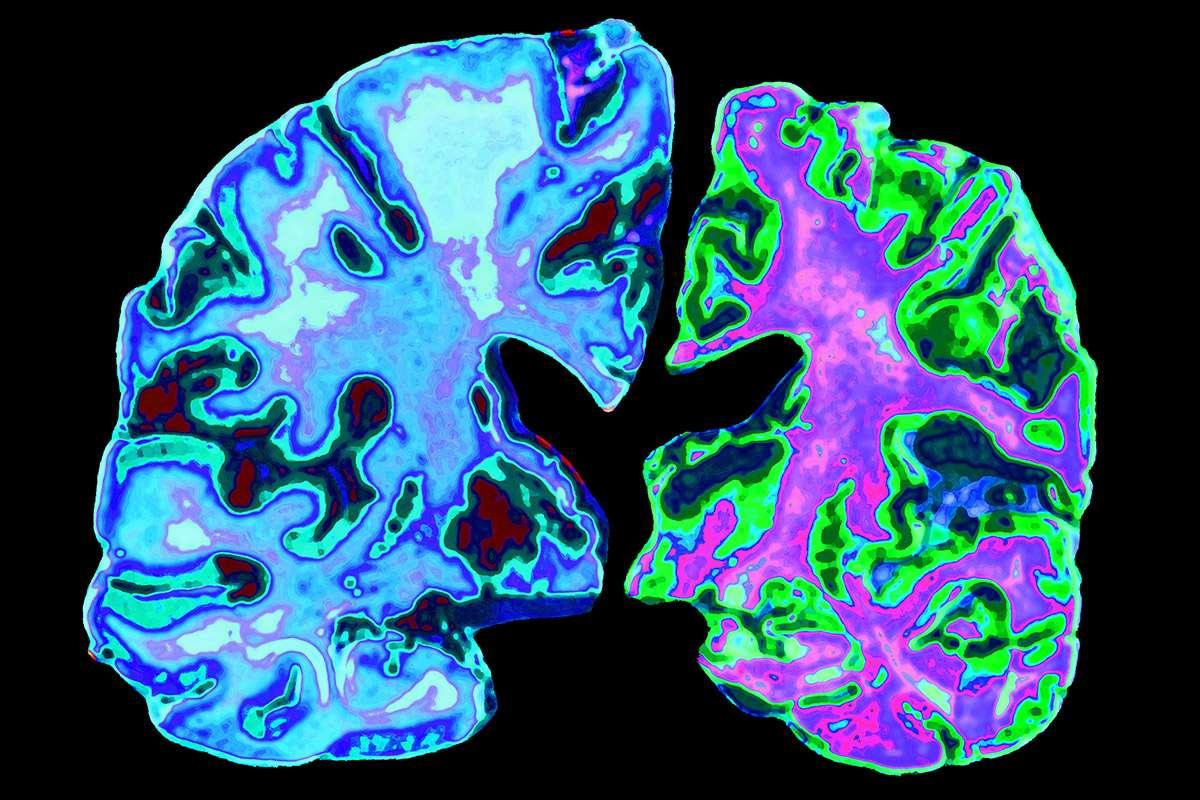Childhood hormone treatments may have spread Alzheimer's proteins https://t.co/ICgQxjMK5u