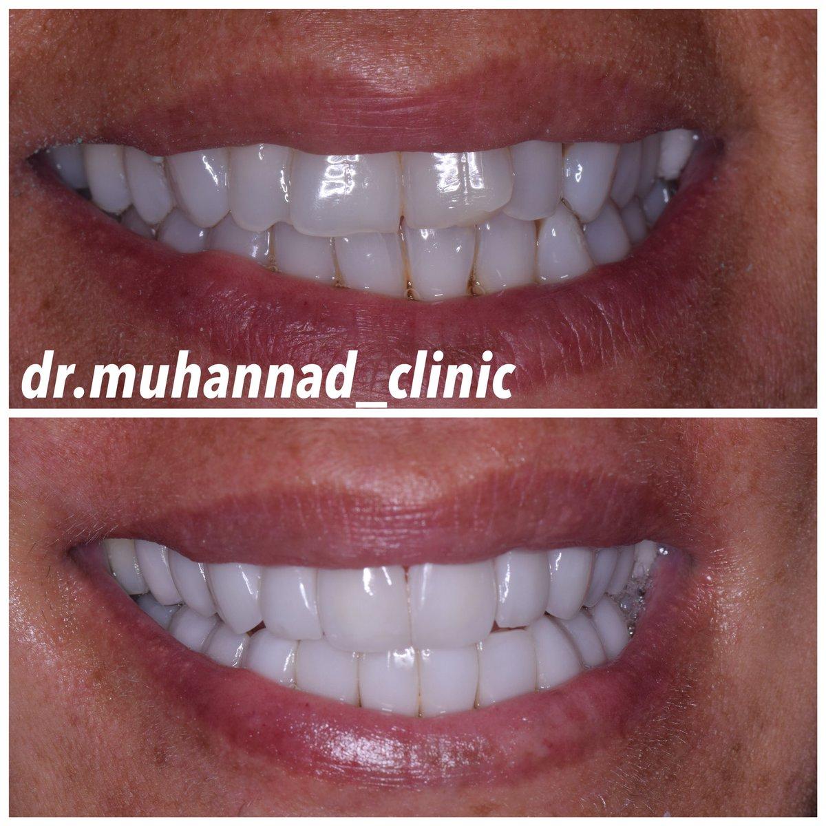 Dr Muhannad Clinic Muhannadclinic Twitter