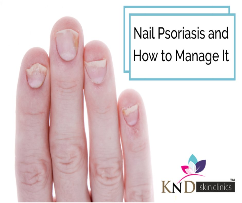 Nail_Psoriasis_and_How_to_Manage_It hashtag on Twitter
