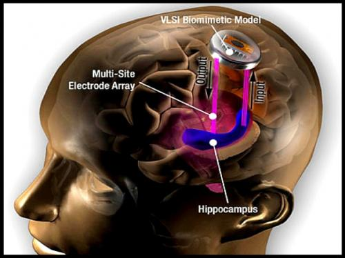 #CyberpunkisNow:  Prosthetic Memory Implants are now a reality- A DARPA funded project  involving a small test of 15 patients at Wake Forest Baptist Medical  Center tested a prosthetic memory system that helped the patients  improve their short-term memory by an average of 35% <br>http://pic.twitter.com/rdO7iub7gW