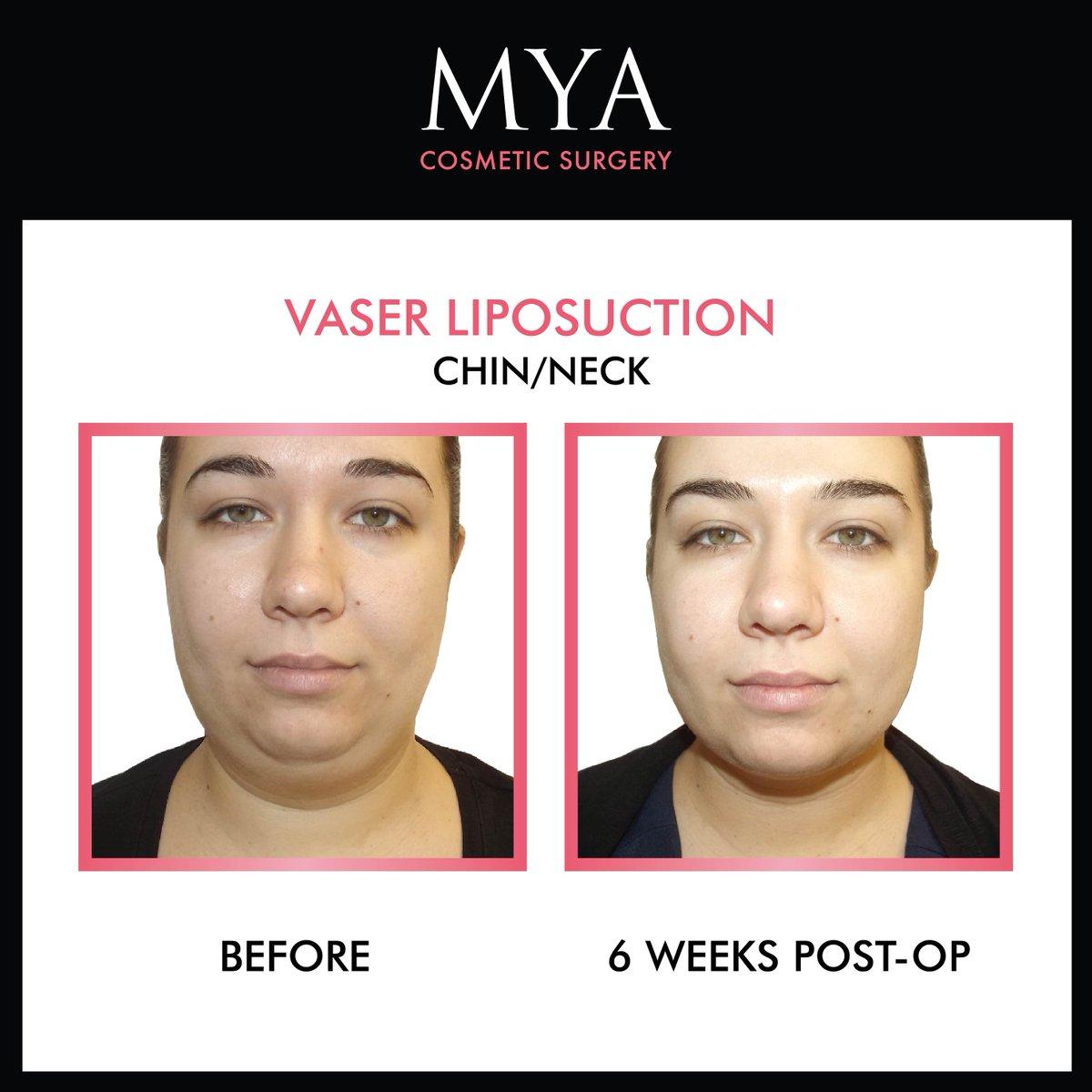 MYA Cosmetic Surgery on Twitter: