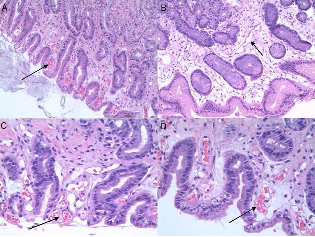 Imágenes de histología de hipertensión portal