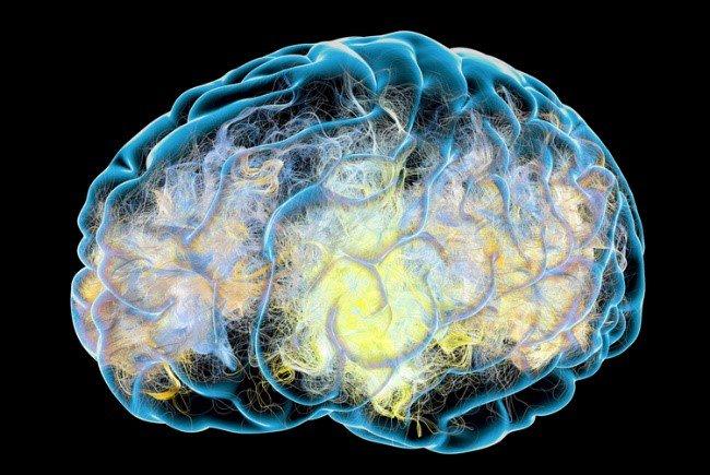 Картинки мозга при гипнозе
