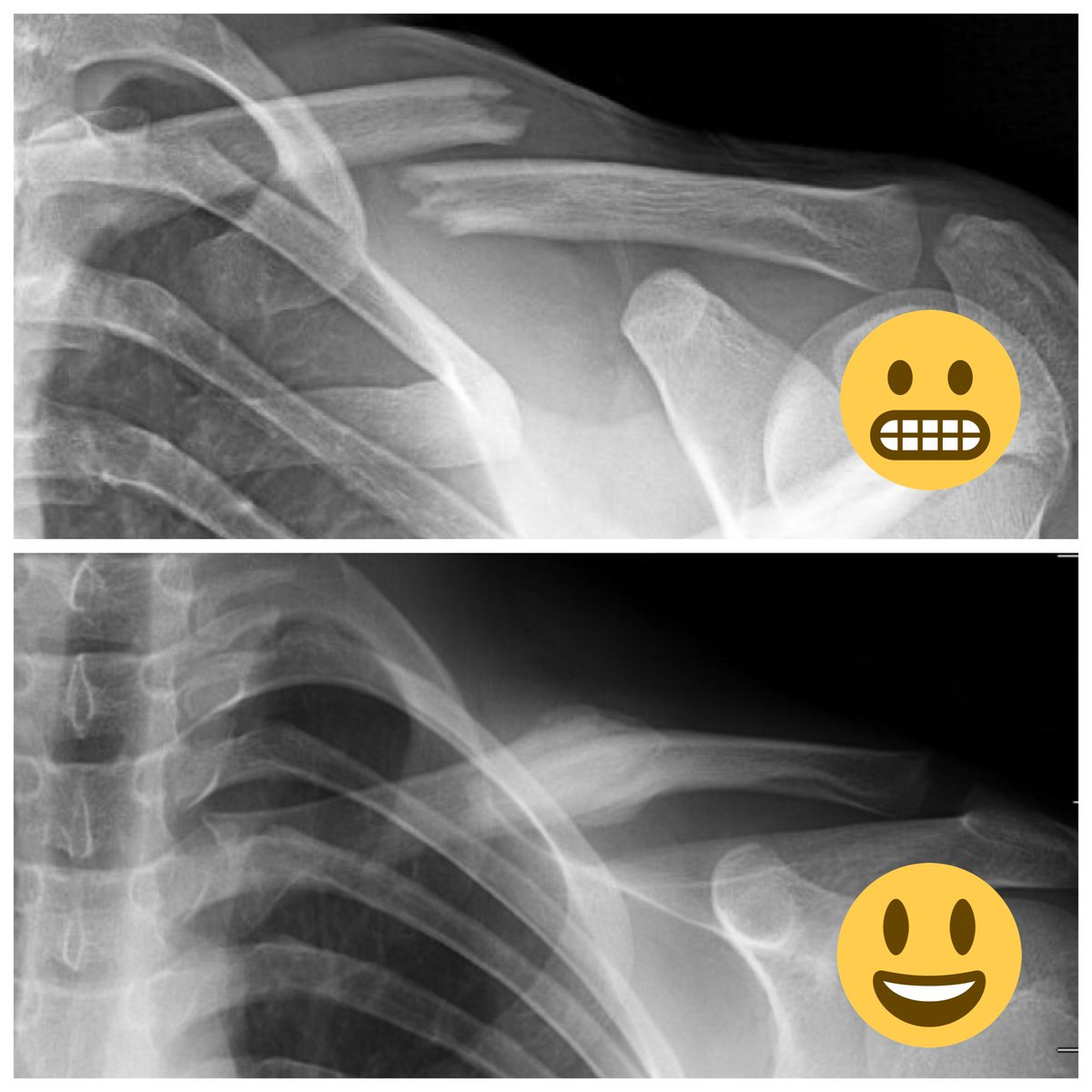 clavicle hashtag on Twitter