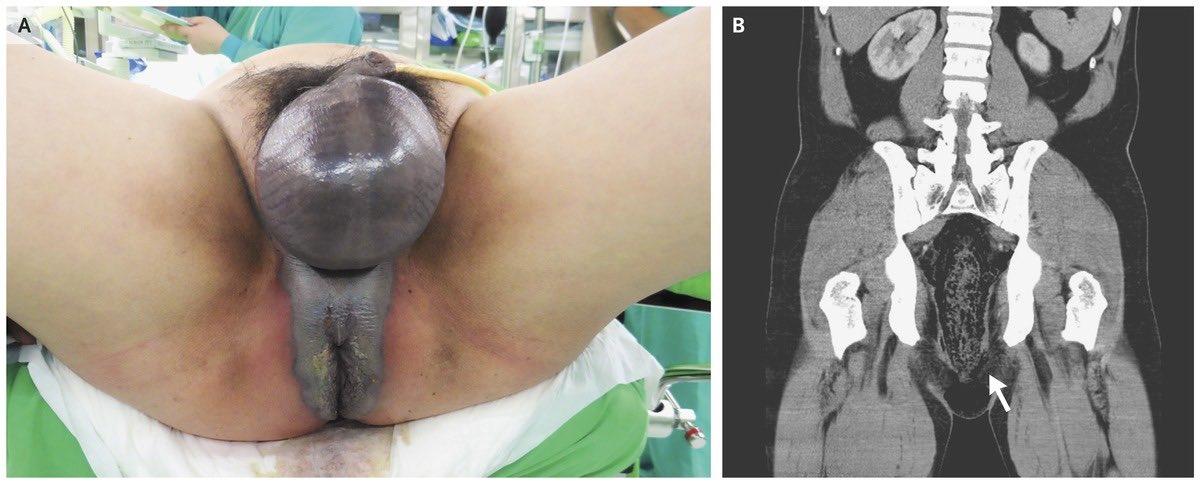 Adult perineum tumor