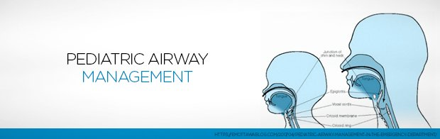 Learn more about Pediatric Airway Management in todays post. lnkd.in/dwrmwFM #airwaymanagement #pediatrics