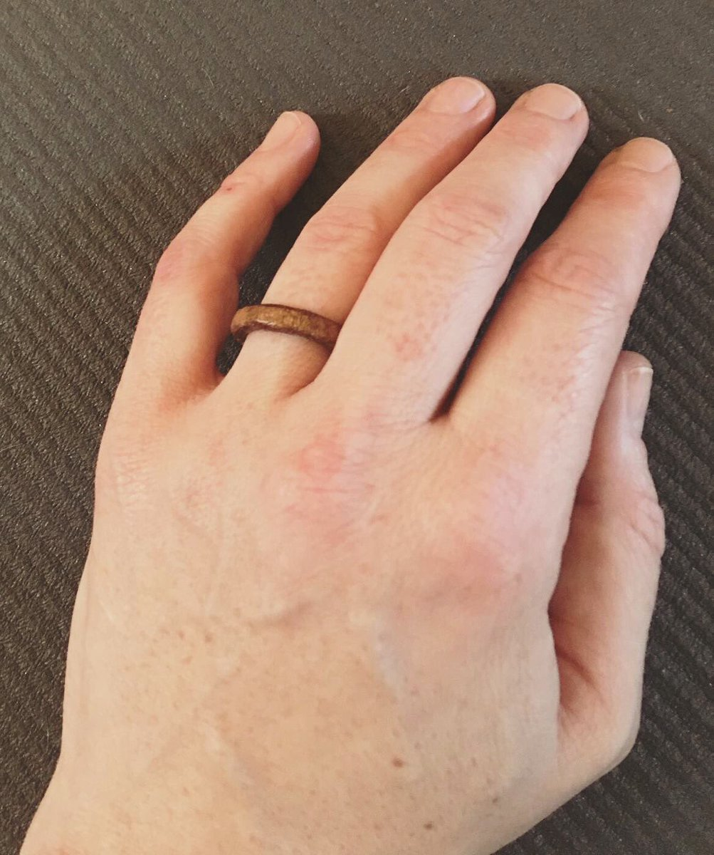 Find you a man who when he finds out that the reason you poo poo romantic gestures is because you don't think anyone will ever want to make them for you, sneaks to the workshop and whittles you an engagement ring #DepressionSucks #SickGirlsClub #TheLuckiest @beeonkeyco pic.twitter.com/i8xDyLQLHL