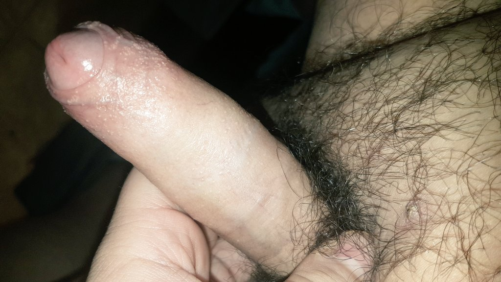 foreskin boner