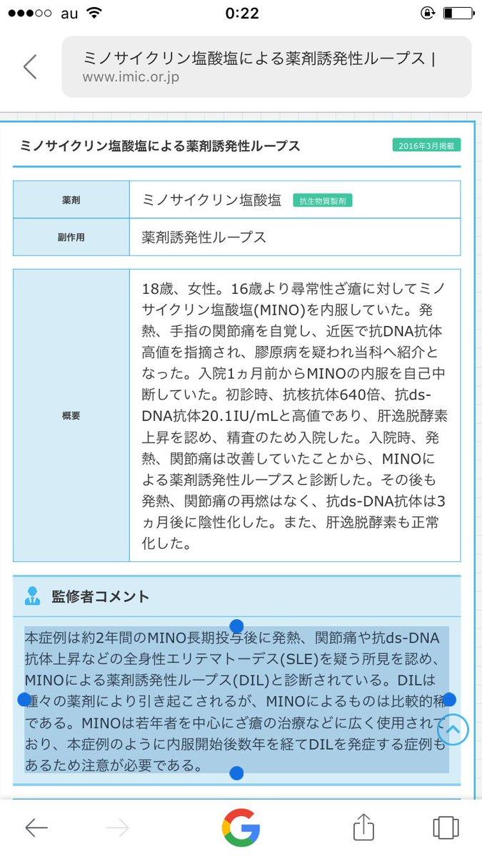 """野村俊一 on Twitter: """"#全身性エリトマトーデス 薬剤誘発性ループス ..."""