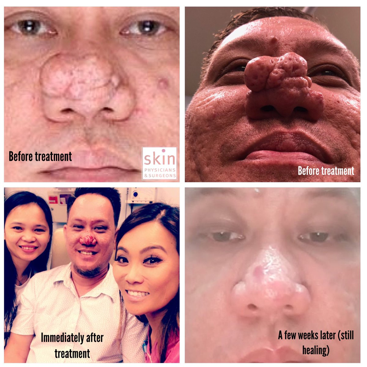 Dr Pimple Popper on Twitter: