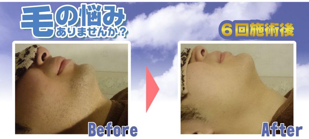 ◆ヒゲ脱毛◆青髭や剃り残しのお悩み、メンズ脱毛dats!(ダッツ)が解決します!≪初回お試し 5,800円≫さぁ、ヒゲ剃りのない毎日へ。