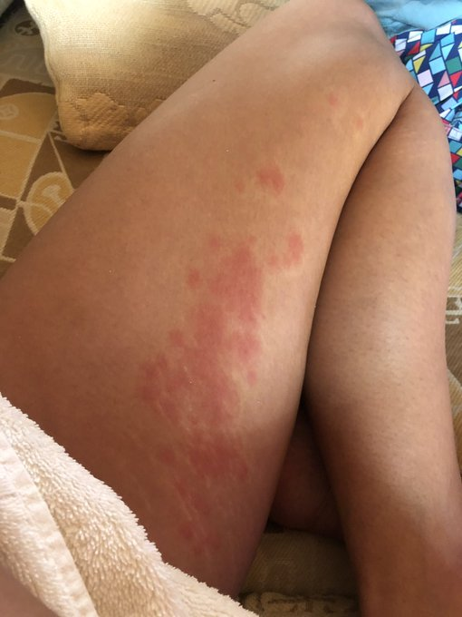 7 Rashes you shouldn't ignore, that are warning signs from your skin