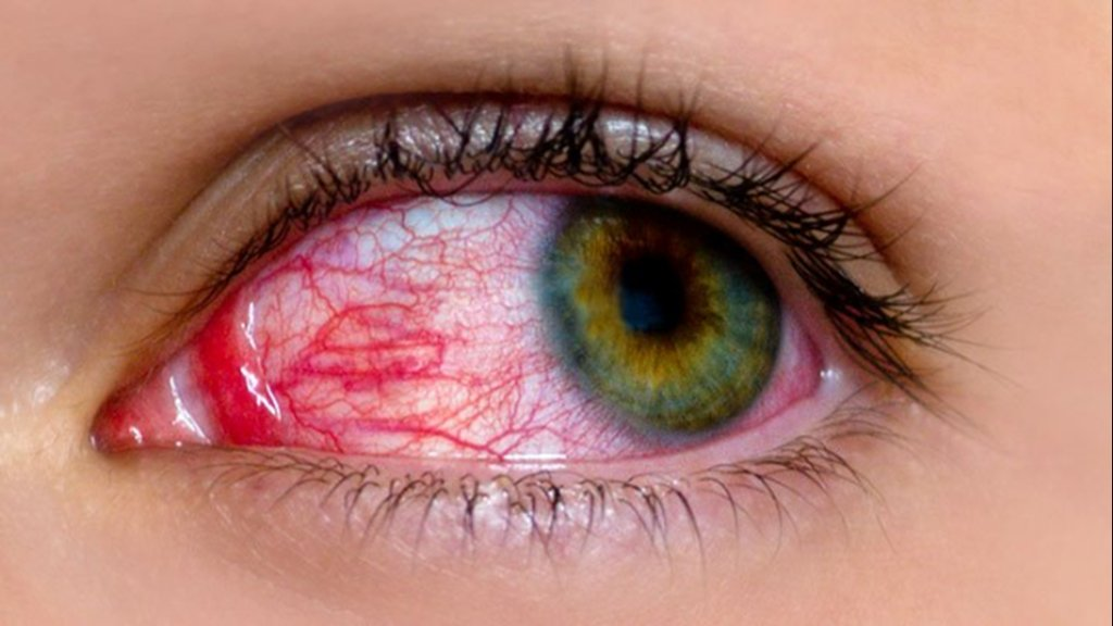 Red, itchy eyes: Is it pink eye or something else? https://t.co/K3nF5K8l2y