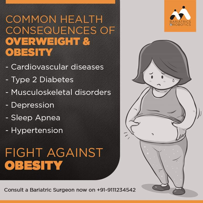 Obesity Fact of the day 11-01-19