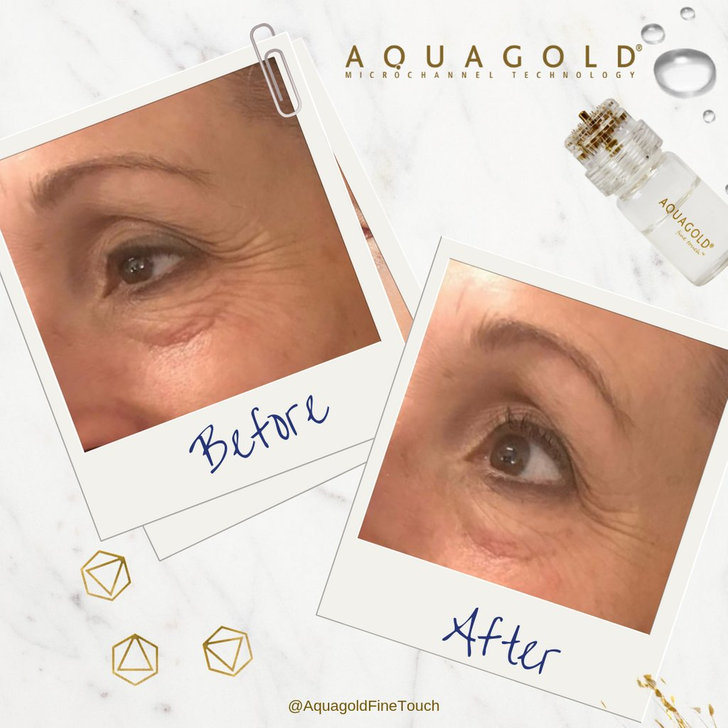 AQUAGOLD® fine touch™ allows you to effectively target skin concerns on even the most delicate areas and sensitive skin with little to no pain and little to no downtime.⠀ ⠀  *Sold only to licensed professionals.  #aquagoldfinetouch #microchanneling #medicaldevice