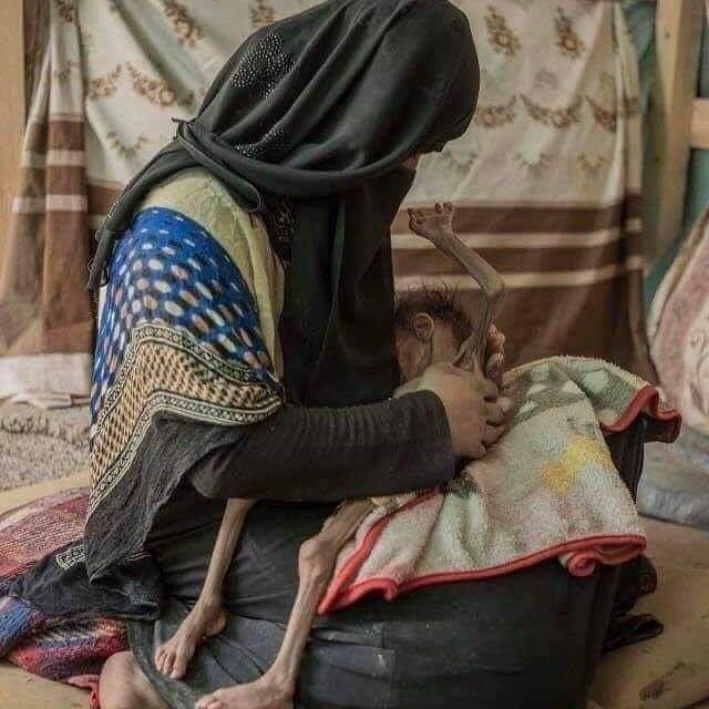 FATİH DOĞDU's photo on #YemeneSesVer