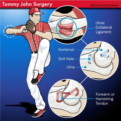 Sounds a lot like Tommy John surgery for Steve Smith; if confirmed would involve reconstruction of medial elbow ligament. Much more common in baseball pitchers (recovery is 9-12 months); luckily for Smith most cricketers return in 3-5 months (S. Marsh in '14 returned in 3 months) <br>http://pic.twitter.com/R4ZR9DGDew