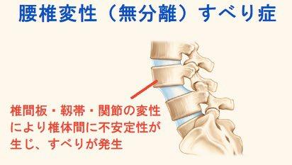すべり トレ 筋 腰椎 症