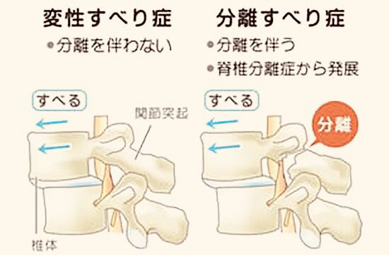 トレ 腰椎 すべり 症 筋